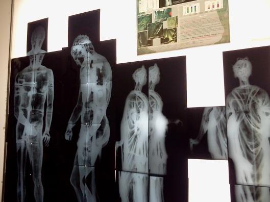 Radiographie de sculptures en bronze