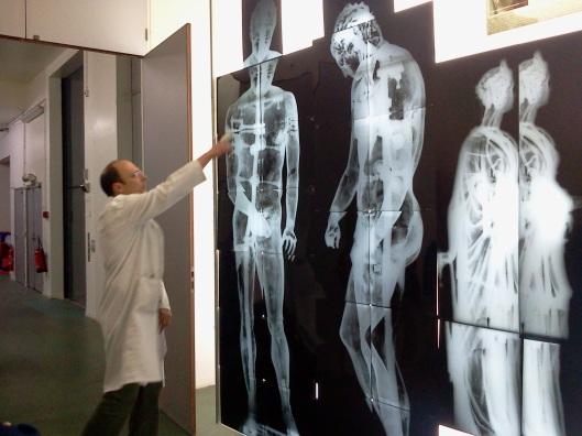 Radiographie de bronzes antiques