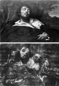 Courbet, l'homme blessé (Orsay), radiographie